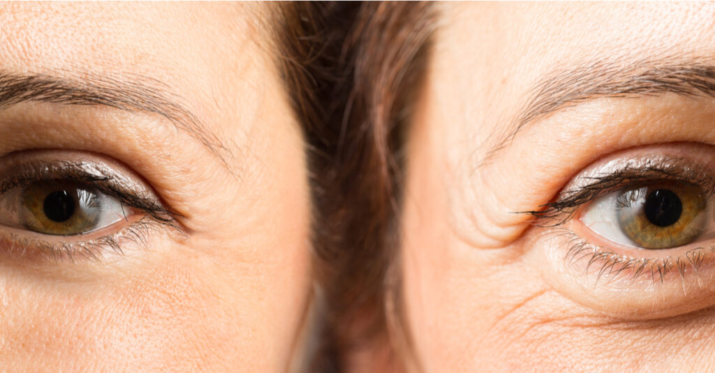 Eye Wrinkles Before and After Botox